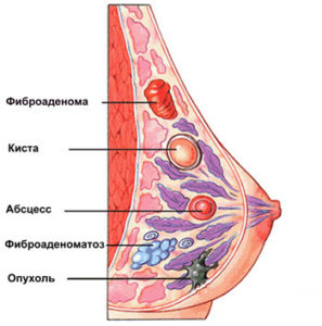 fibroadenoma-molochnoy-zhelezy