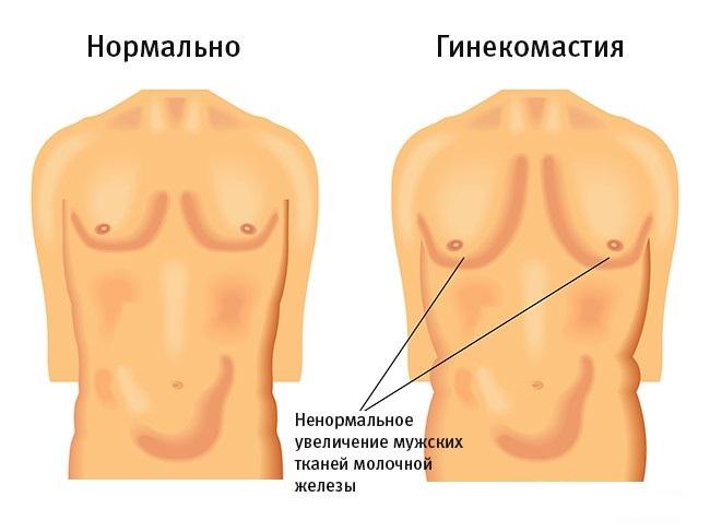 Гинекомастия у мужчин признаки