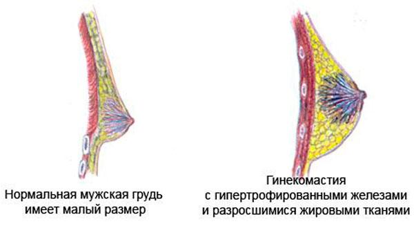 Гинекомастия у мужчин, лечение в Киеве